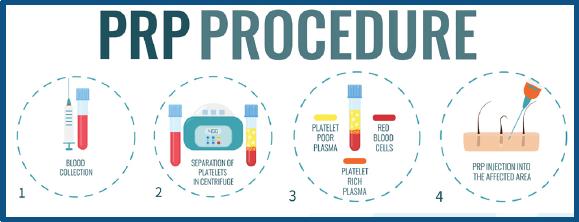 PRP Procedure Chart